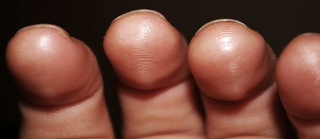 Best Way to Build Calluses for Guitar - TheGuitarLesson.com